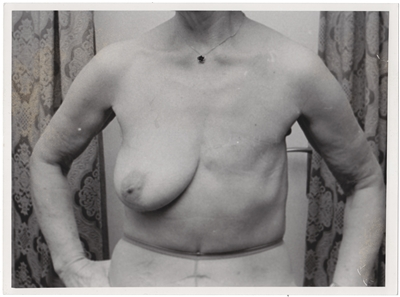 Mastectomy